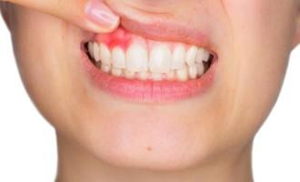Estresse pode levar à perda dos dentes