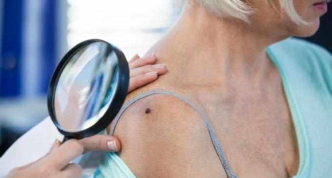 Ação constata 22% de casos suspeitos de câncer de pele em mais de mil pacientes avaliados