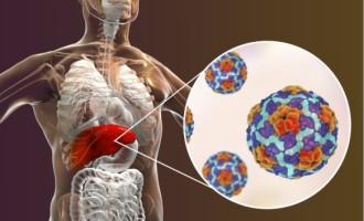 Os perigos da Hepatite A