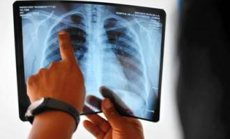 Pneumonia: doença é a principal causa de morte em crianças menores de cinco anos em todo o mundo
