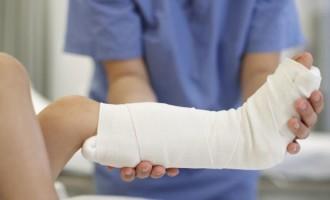 VERÃO : Queimaduras e fraturas estão entre acidentes mais comuns