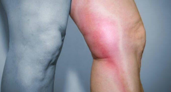 COVID-19 :  Trombose pode acontecer até 4 semanas após recuperação