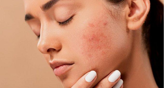 Lesões na pele podem ser indicativo de covid-19